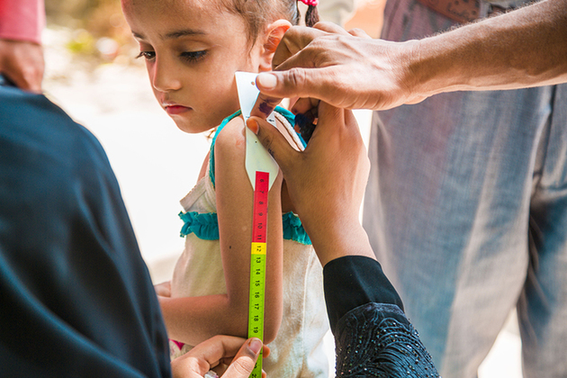 A child being screened for malnutrition in Yemen. Picture: UNICEF