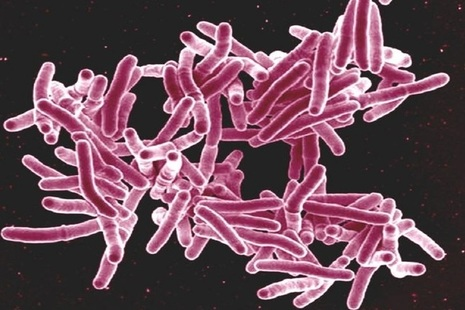 Magnification of TB genetic code