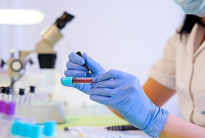 Healthcare worker marking blood vial in laboratory