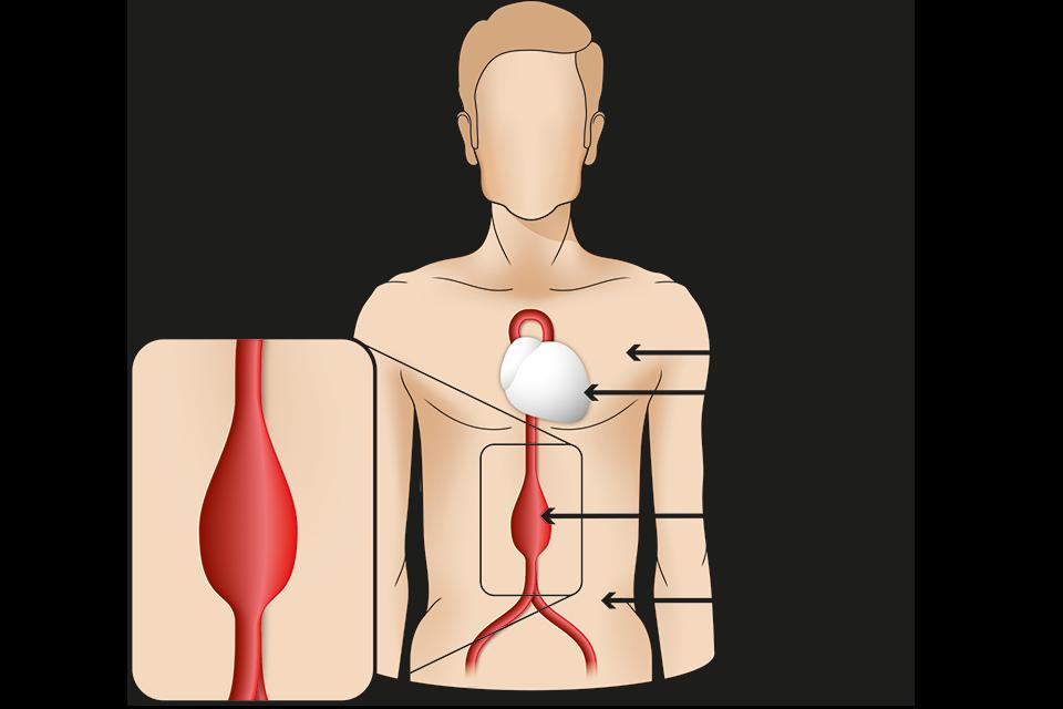 Totul despre ruptura de ligament incrucisat anterior ( LIA ) | media-graphics.ro