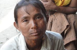 Daw Thi May Oo, resident of Ohn Taw village, no longer has to walk miles each day for water thanks to Merlin and UK aid. Picture: Merlin