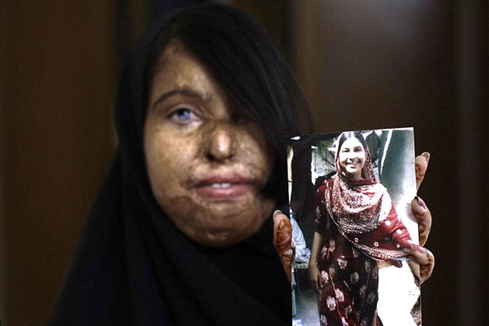 Naila shows a picture of herself before the acid attack. Picture: Acid Survivors Foundation