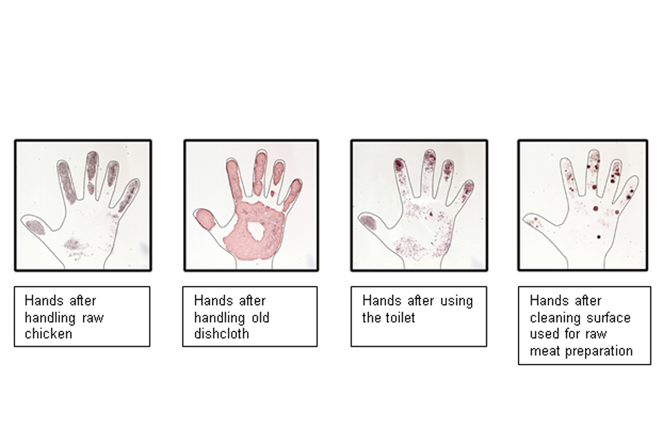 Bacterial colonoies grown from contamination on the hands