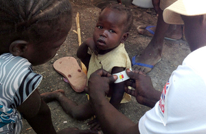 A child is checked for signs of malnutrition in South Sudan. Picture: Nick Stanton/International Medical Corps