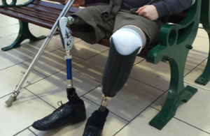 ProsFit: Picture showing a prosthetic leg.