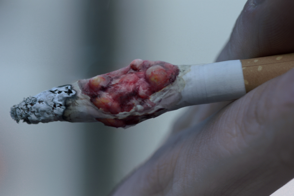 Chronic smoking-related lung disease blights over 1 ...