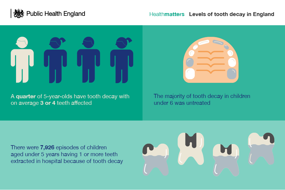 Infographic showing levels of tooth decay in England
