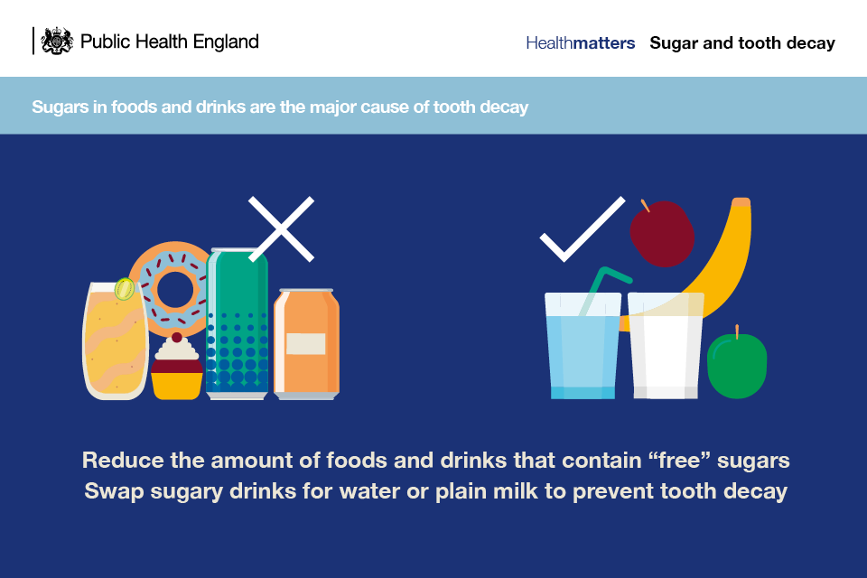 Infographic illustrating that sugars in foods and drinks are the major cause of tooth decay