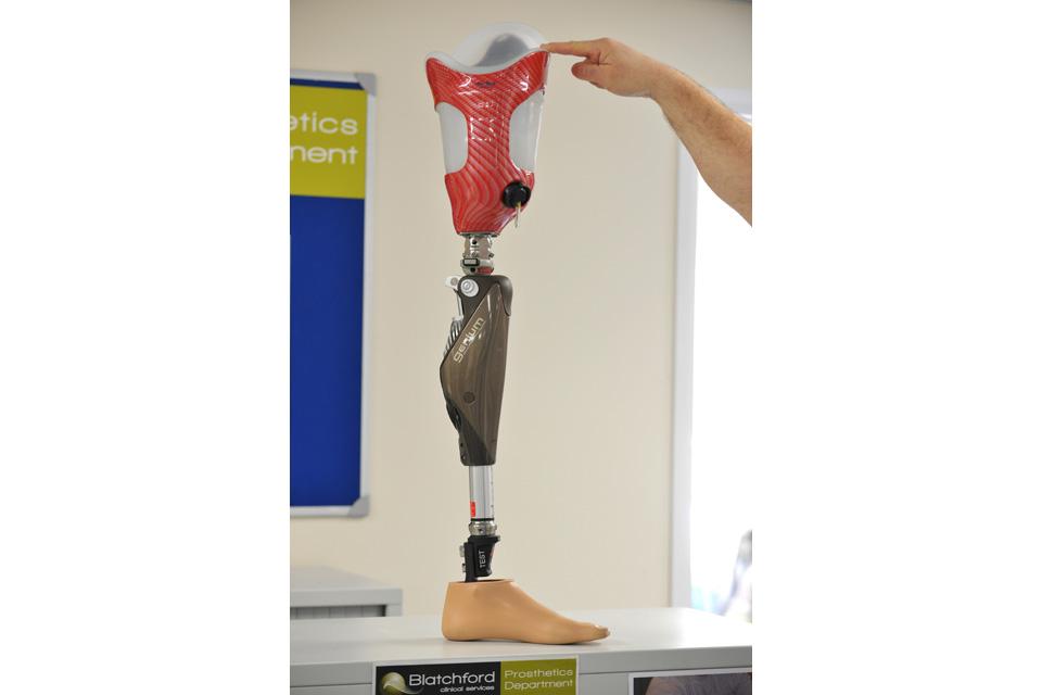 The Genium C-Leg® bionic prosthetic system