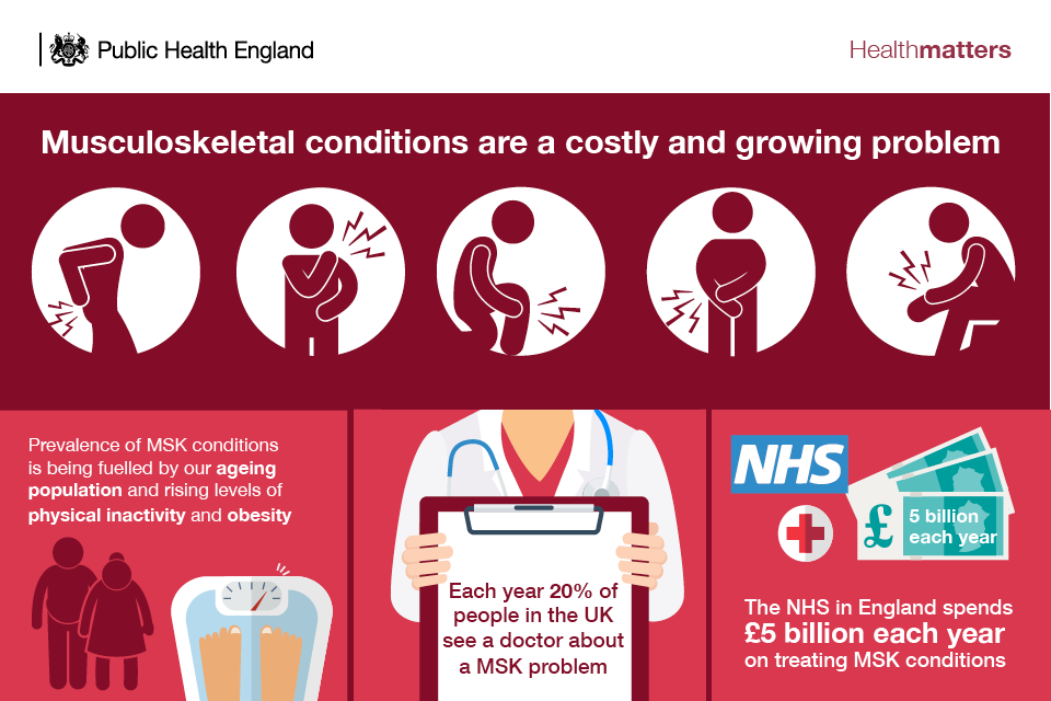 Infographic showing the prevalence and cost of MSK conditions