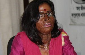 Hasina - an acid attack survivor. Picture: Narayan Debnath/DFID