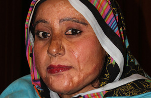 Nusrat, an acid attack survivor, who was helped by the Acid Survivors Foundation. Picture: DFID