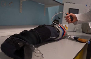 New treatment for limb injuries is demonstrated