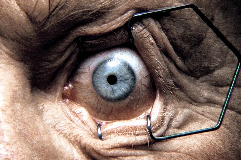 Staring eye prepared for medical procedure