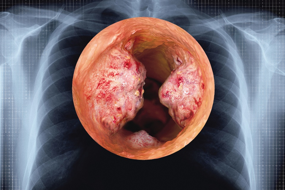 Lung tumour cross-section against ribcage x-ray