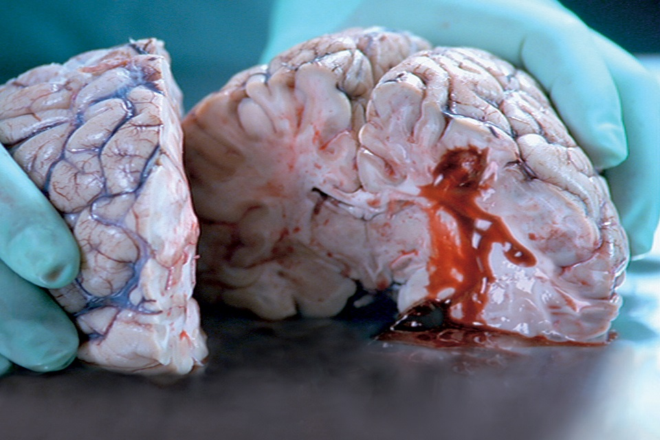 Dissected  brain of stroke victim