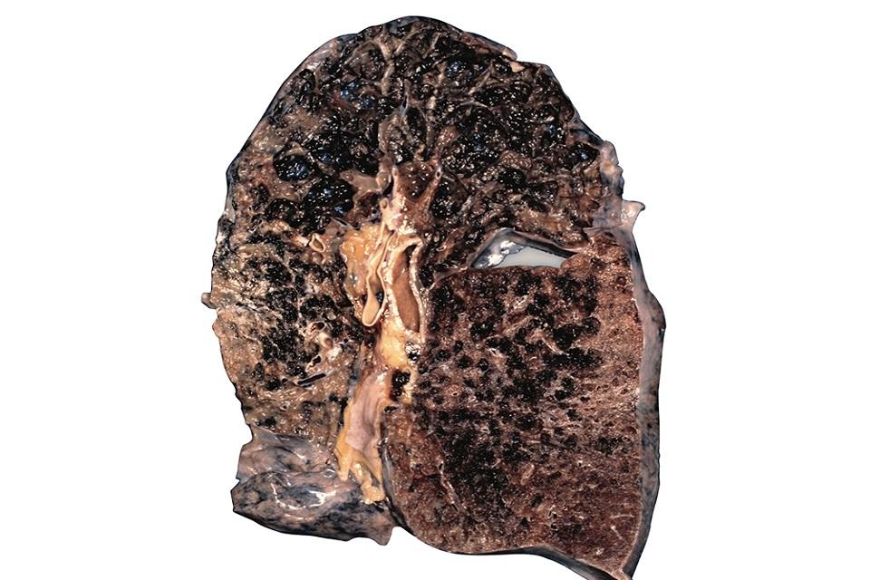 Lung of emphysema sufferer