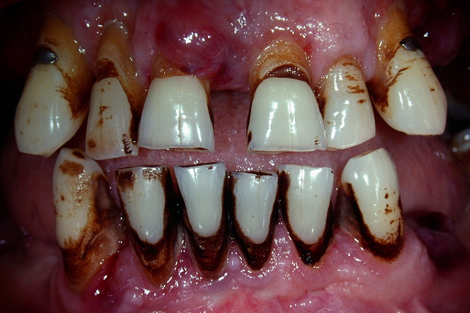 Stained teeth of smoker aged 50