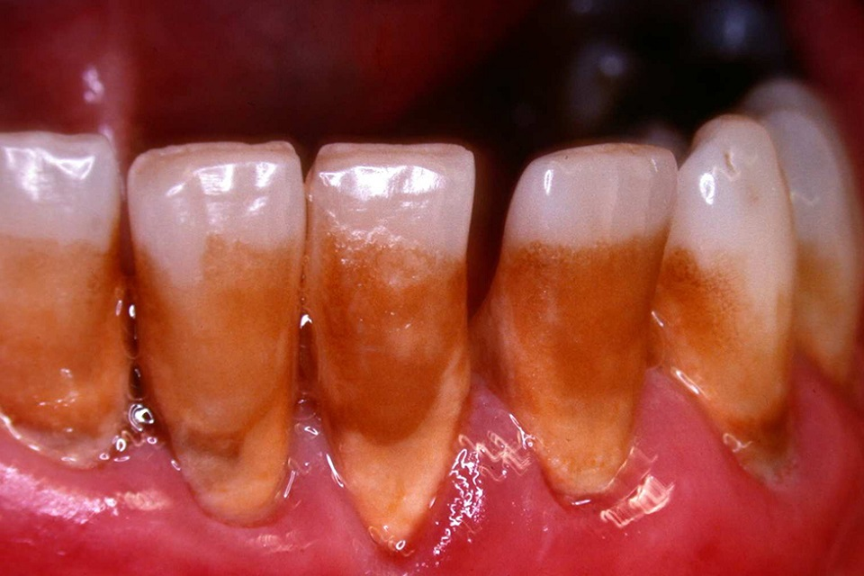 Stained teeth of smoker aged 45