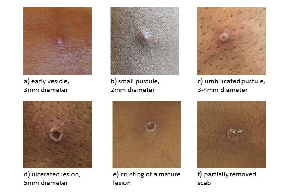 Images of individual monkeypox lesions