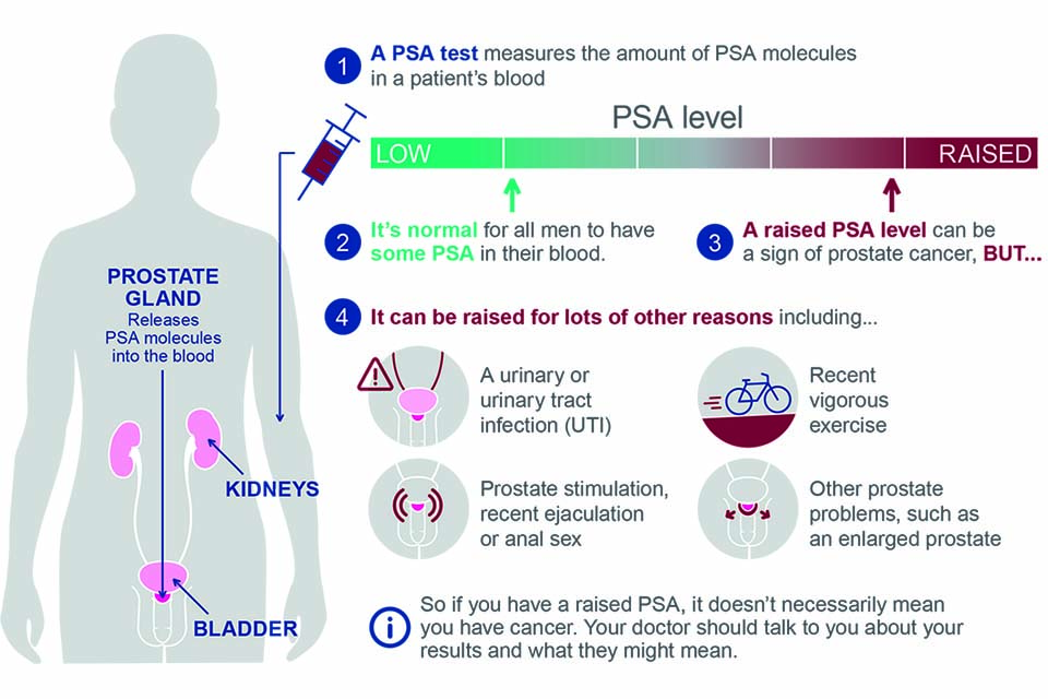 Advising Well Men About The Psa Test For Prostate Cancer Information For Gps Gov Uk